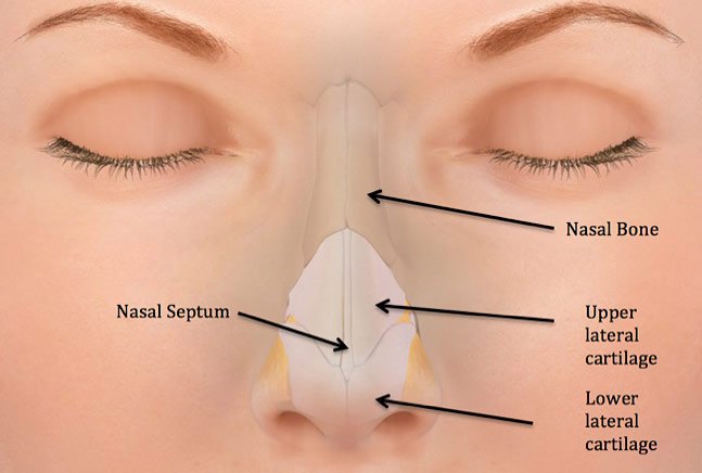 Figure 1: Nasal trauma commonly results in fractures of the delicate nasal bones as well as bruising, displacement, or perforation of the underlying nasal septum.